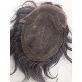 prótese de cabelos para homens preço em Toca do Tatu
