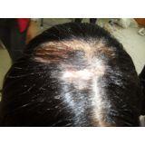 prótese capilar para alopecia