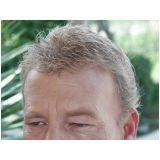 quanto custa prótese de cabelo masculino no Jardim Ivone