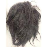 quanto custa prótese de cabelos para homens no Horto Florestal